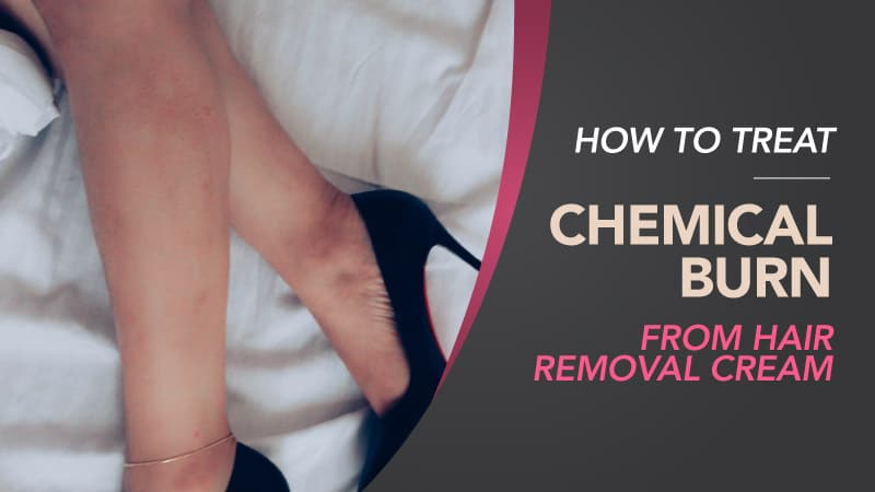 How-To-Treat-Chemical-Burn-From-Hair-Removal-Cream